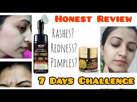 WOW SkinScience Vitamin C - 7 DAYS CHALLENGE (Facewash & FaceCream)  100% Honest Review