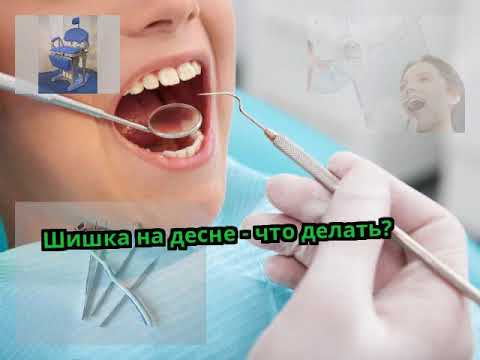 Мягкая шишка на десне над зубом не болит