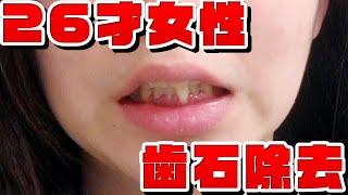 26才女性👩歯石除去🦷tartar removal