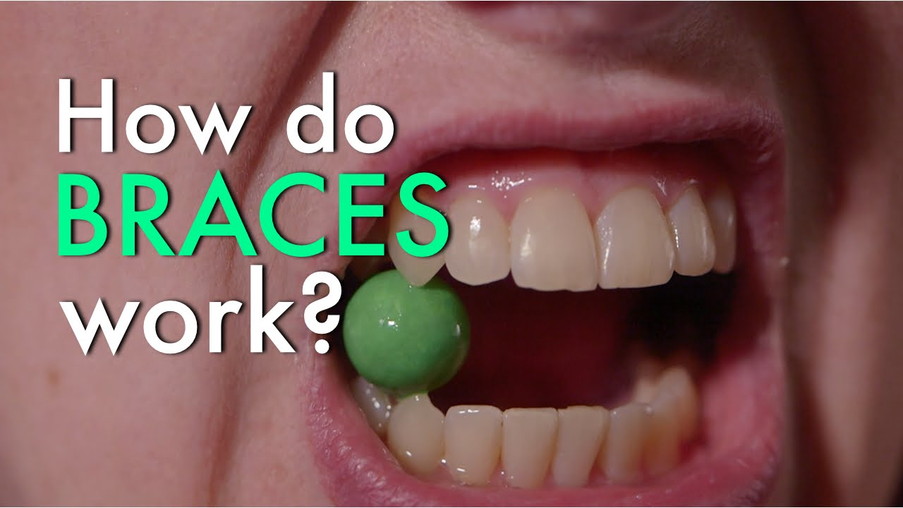 The Only Guide to How Do Braces Work