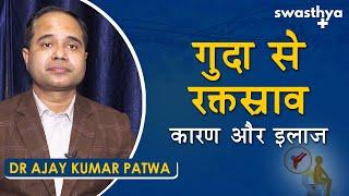 गुदा से रक्तस्राव - कारण, इलाज   Dr Ajay Kumar Patwa on Blood in Stool in Hindi   Causes & Treatment