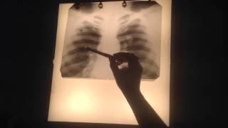 видео Плевропневмония (долевая пневмония): причины, симптомы, последствия и лечение