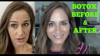 BOTOX: Best Before & After Video!