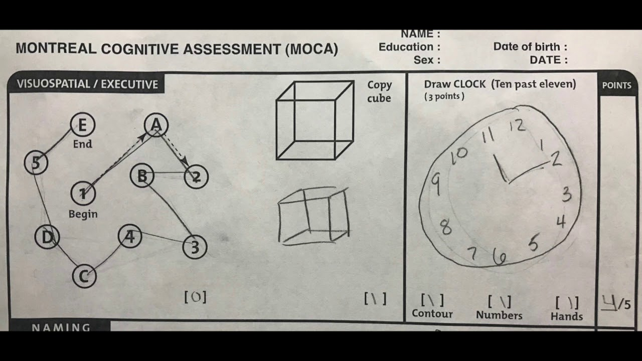 Montreal Cognitive Assessment MoCA Instructional Video