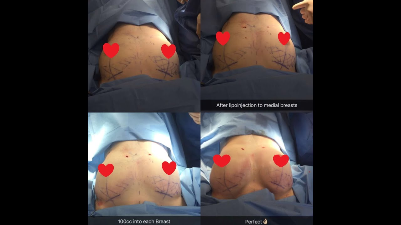 Breast Augmentation Fat Transfer 61