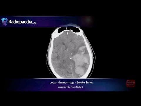 Stroke: Lobar haemorrhage - radiology video tutorial (MRI, CT) thumbnail