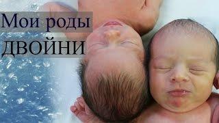 Мои легкие роды двойни в США | Tanya's Twins(Мои роды мальчиков-двойняшек на 38 неделе беременности. Делюсь опытом и советами. Рассказываю о эпидурально..., 2016-01-31T06:05:56.000Z)