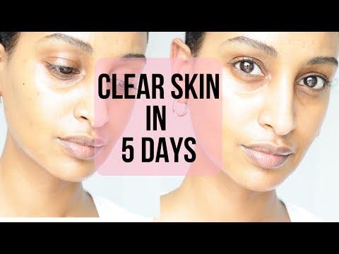 CLEAR GLOWING SKIN w/ Sweet Almond Oil| Segen Misghina
