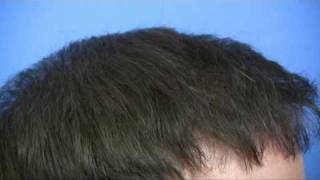Hair Restoration by Dr Wong - 5864 Grafts - 1 Session