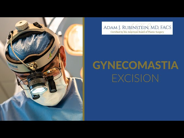 Gynocomastia operation done in Miami, FL 2020