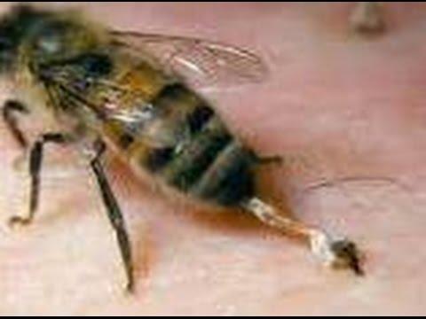Пчелиный укус. Опухоль, отек и аллергия после укуса. (необходимо приложить холод)