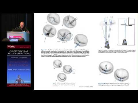 Surgery for Valvular Disease  (Basel Ramlawi, MD)