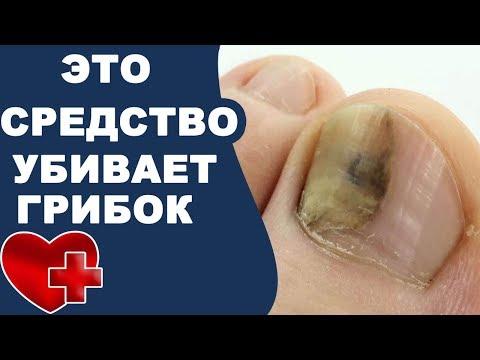 Как легко убить грибок ногтей подручными средствами!