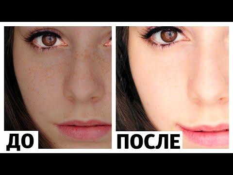 Как отбелить кожу на лице