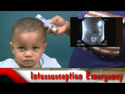 Life Threatening Intussusception Emergency