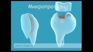 видео виды протезирования зубов