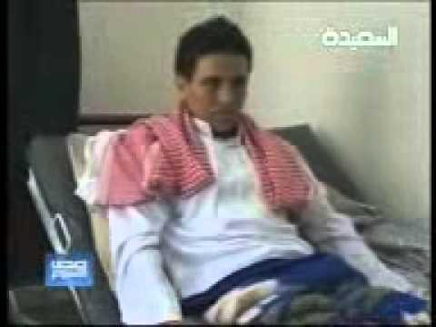 امراءة في اليمن تتحول الى رجل^^ نبيلة تتحول الى نبيل