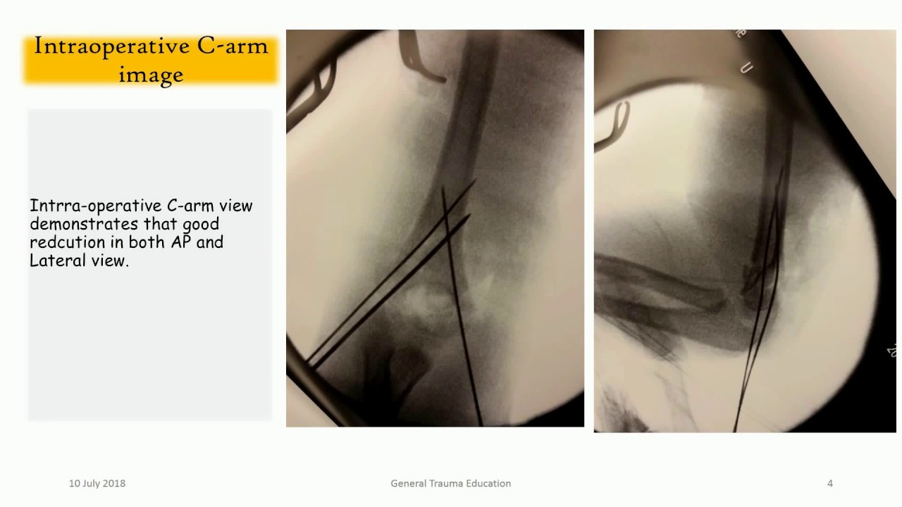 Diffucult elbow fracture in elbow. (How I treated )