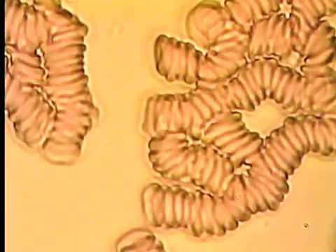 кровь под микроскопом фото