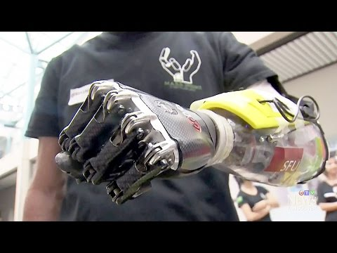 B.C. team's bionic hand going to 'Cyborg Olympics'