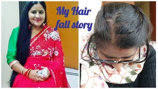 My hair loss story||Telogen effluvium||Excess Hair fall||Hair care||Hair fall treatment