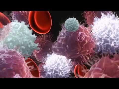 Kanker Darah atau Leukimia ( Blood Cancer ) - YouTube