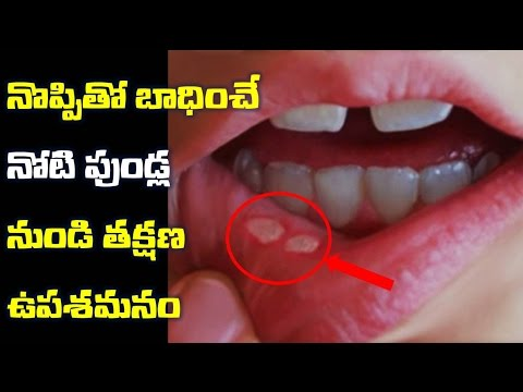 మౌత్-అల్సర్-ఎఫెక్టివ్-గా-నివారించే-హోం-రెమెడీస్- -mouth-ulcer-effective-ga-nivarinche-remides-?