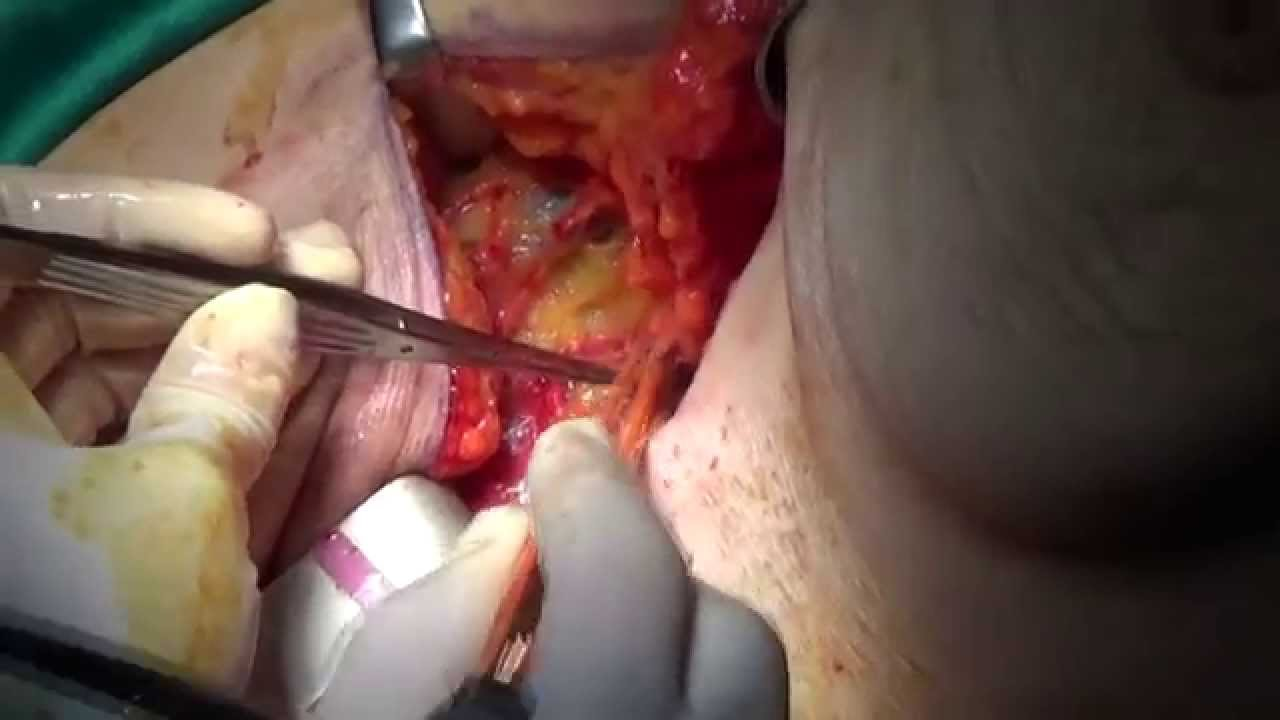 Axillary Lymph Node Dissection Youtube