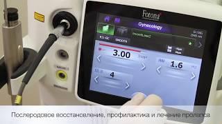 Лазерное интимное омоложение на аппарате Fotona