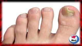 Remedios caseros para hongos en los pies - Como tratar los hongos en las uñas de los pies