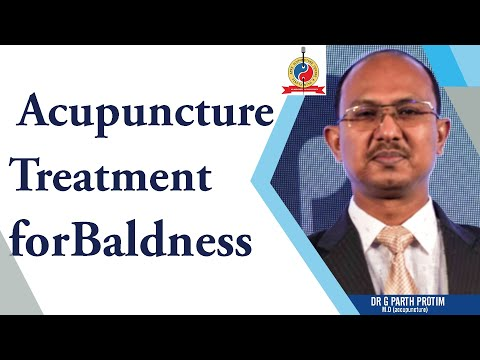 Acupuncture treatment for baldness by dr g parth protim