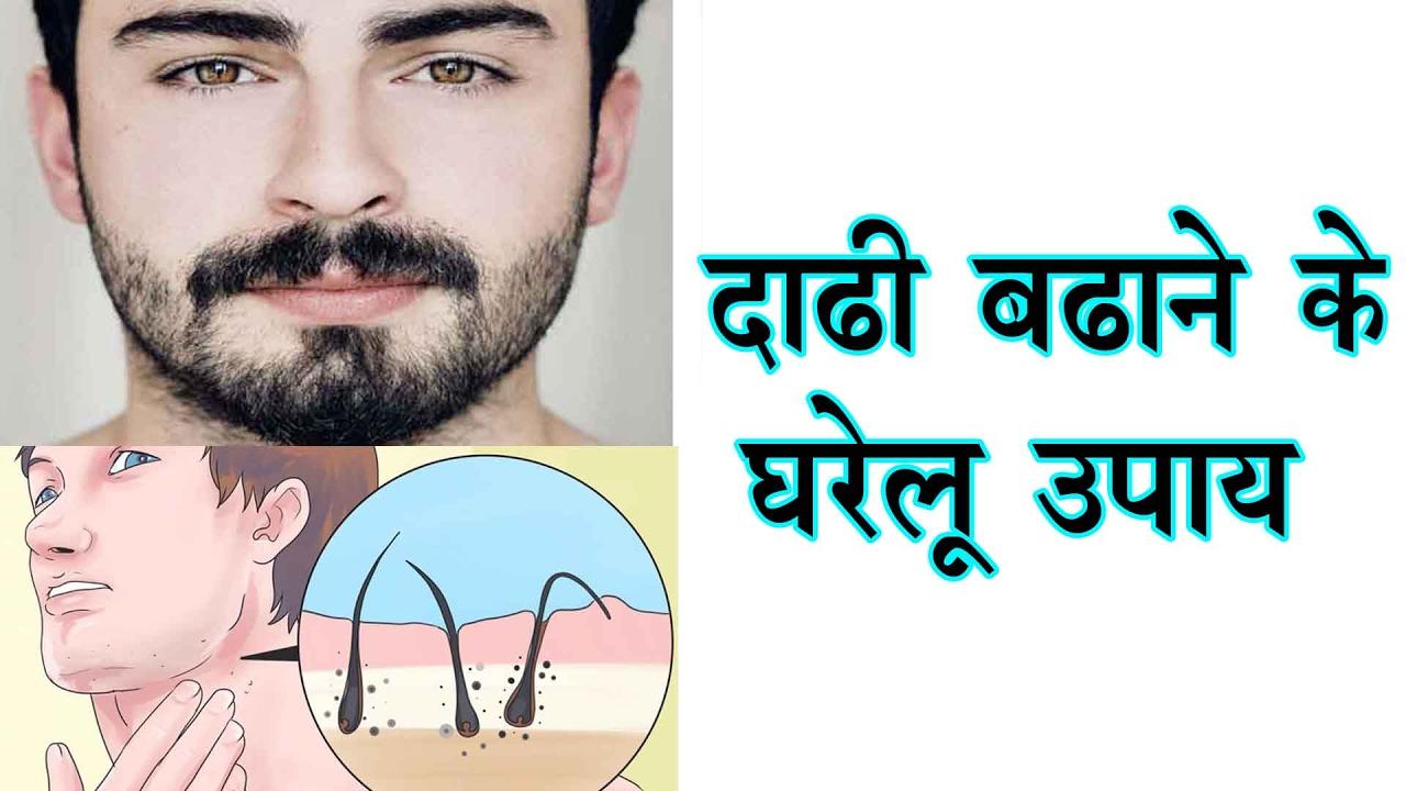 दाढ़ी बढ़ाने के घरेलु उपाय - Dadhi Badhane Ke Gharelu Upay