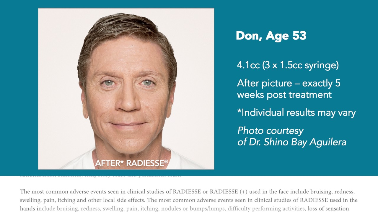 RADIESSE® dermal filler–ideal for a man's rugged skin!