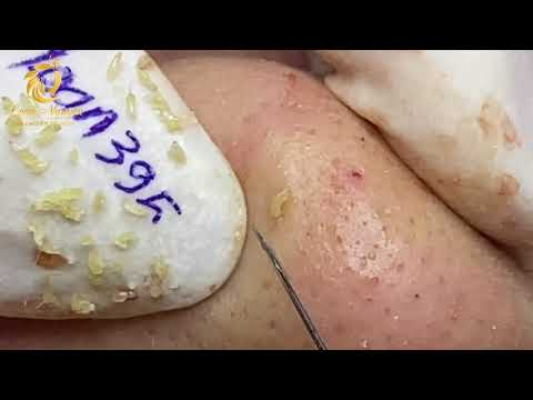 Treatment of blackheads and whiteheads (395) | Loan Nguyen