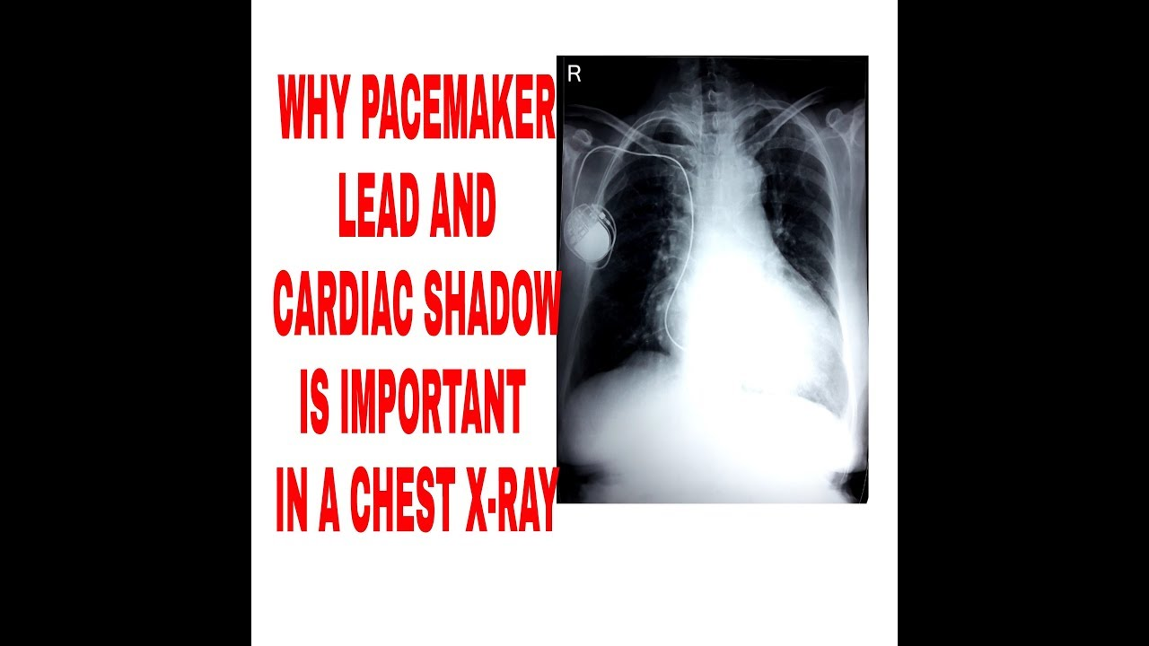 IMPORTANCE OF PACE MAKER LEAD AND CARDIAC SHADOW IN CHEST ...