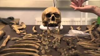 Video Determining Age At Death - Human Osteology Introduction 4 of 4 download MP3, 3GP, MP4, WEBM, AVI, FLV Januari 2018