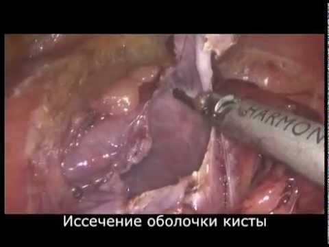 Лапароскопическое иссечение кисты почки - YouTube