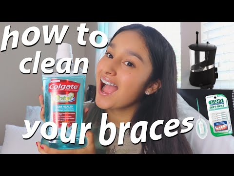 How to Clean your Braces!! | Braces Care & Experience