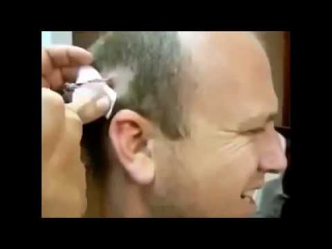 dr pimple popper youtube 2016