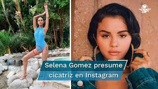 Selena Gomez manda el mensaje de que todos los cuerpos son hermosos