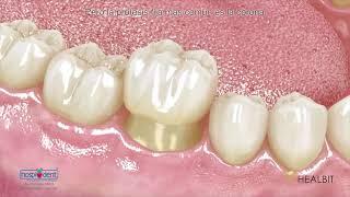 Odontologia Carvalho - Próteses fixas