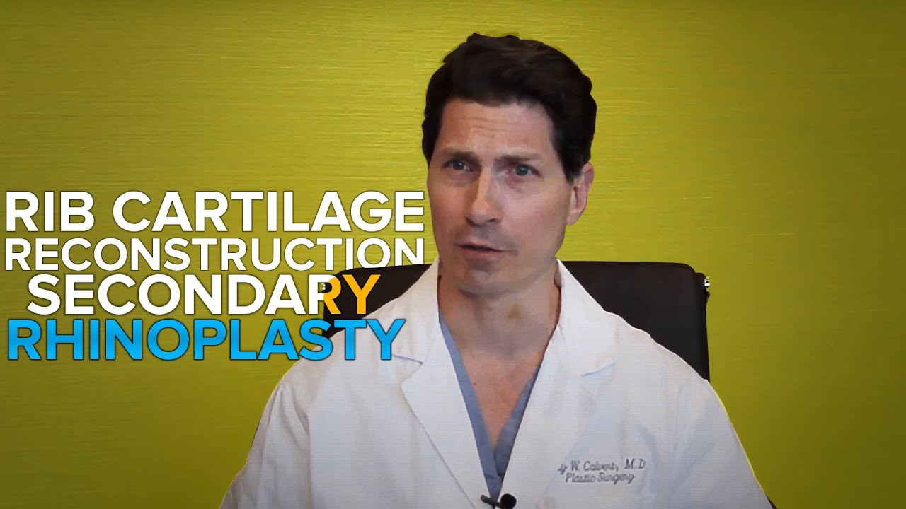 dr jay calvert explains rib cartilage reconstruction secondary dr jay calvert explains rib cartilage reconstruction secondary rhinoplasty