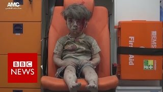 Human face of war: Aleppo boy image draws outrage - BBC News