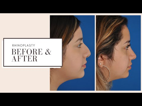 plastic-surgery-before-&-after-|-rhinoplasty-(nose-job)-|-eskmd-nyc