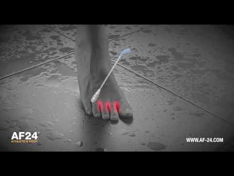 AF24 Athlete's Foot ENG