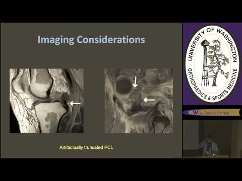 Orthopaedics & Sports Medicine Grand Rounds - May 6th - Management of Knee Injury
