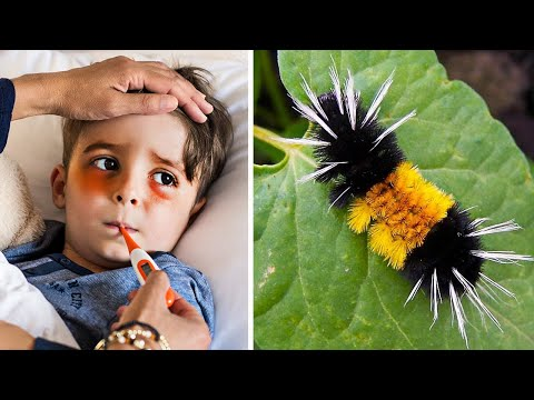 This Caterpillar Looks Innocent, But It Hospitalized This 4YearOld With One Touch