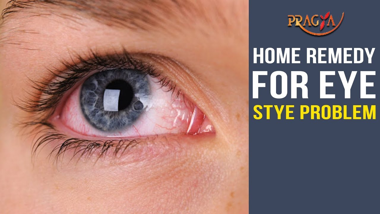 Watch Home Remedy For Eye Stye Problem Cure Youtube