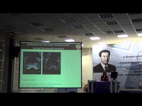 Гистосканирование - новые данные 2012
