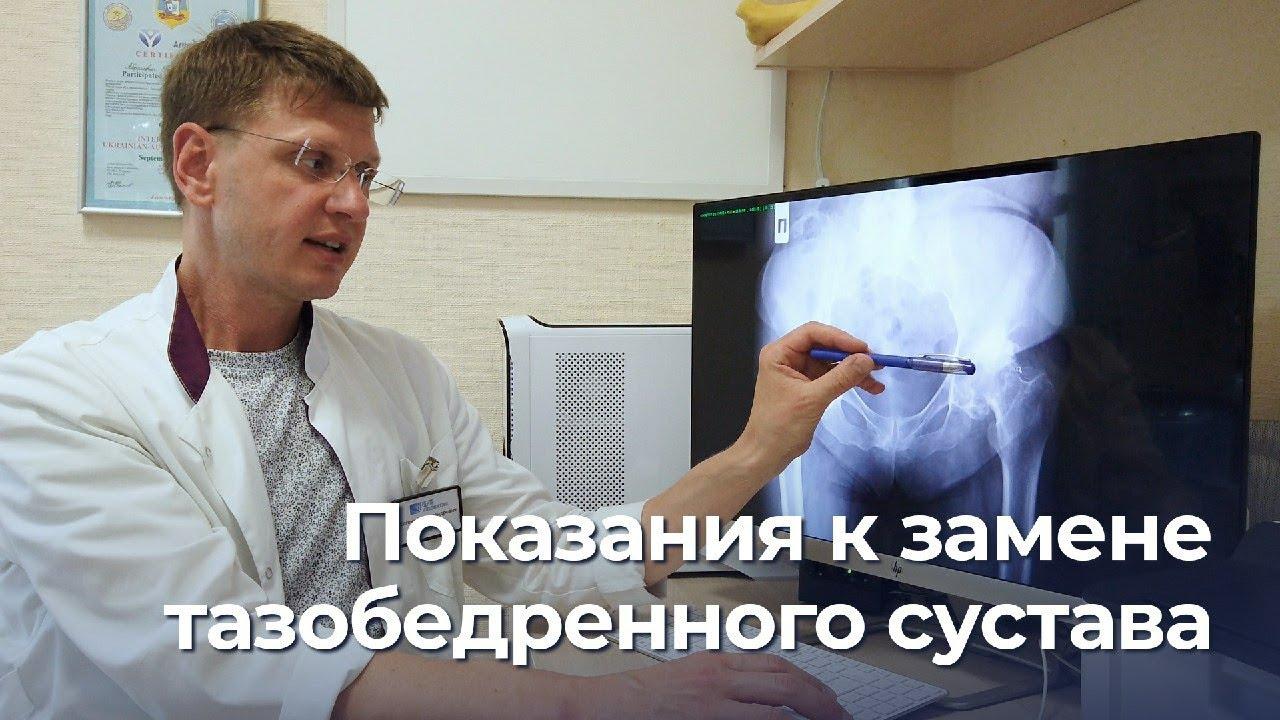 Болит тазобедренный сустав. Замена сустава, эндопротезирование при артрозе